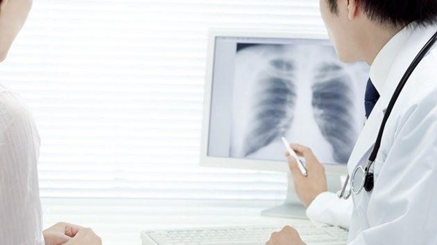 tüberküloz-verem-akciğer