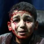 Yaralı Suriyeli bir çocuk tedavi olmak için bekliyor. Yüzündeki ifadeden yaşadığı korku ve dehşet okunabiliyor. Fotoğrafçı: ABD DOUMANY  Yer: Suriye Tarih: 2 Şubat 2015