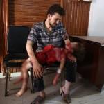 Esad güçlerinin saldırısı sonrası hayatını kaybeden kızını kucağında tutan ve ona belki de son kez bakan bir baba. Fotoğrafçı: ABD DOUMANY Yer: Suriye Tarih: 24 Ağustos 2015