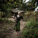 23 yaşındaki Malavili Mainasi Issa isimli albino kadın, 2 yaşındaki çocuğunu kucağında taşıyor. Geçtiğimiz Aralık ayından beri Malavi'de 6 albinonun öldürüldüğü bildirildi.  Fotoğrafçı: GIANLUIGI GUERCIA Yer: Malavi Tarih: 17 Nisan 2015
