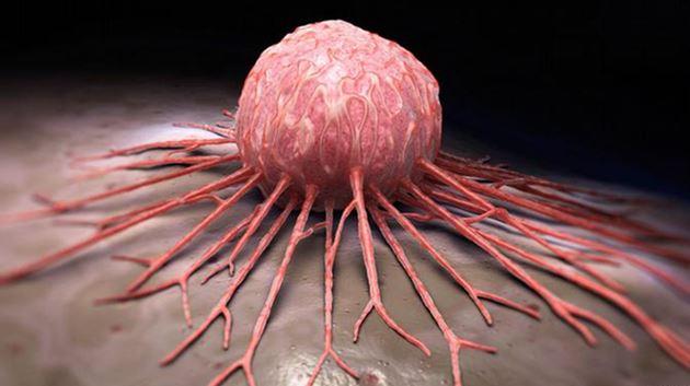 Kanserde gaz pedalına basan ayak: Şeker