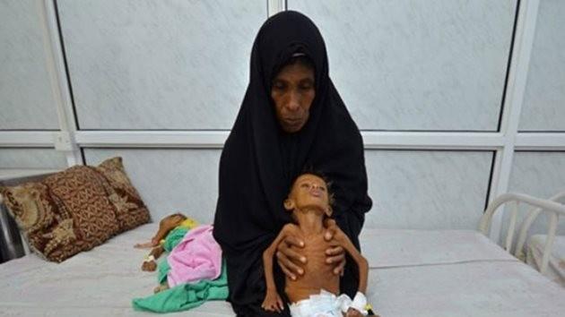 yemen-aclik