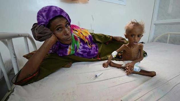 """""""Yemenlilerin yarısından fazlası aç!"""""""