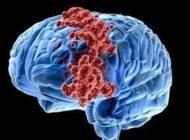 Virüsle kanser tedavisi
